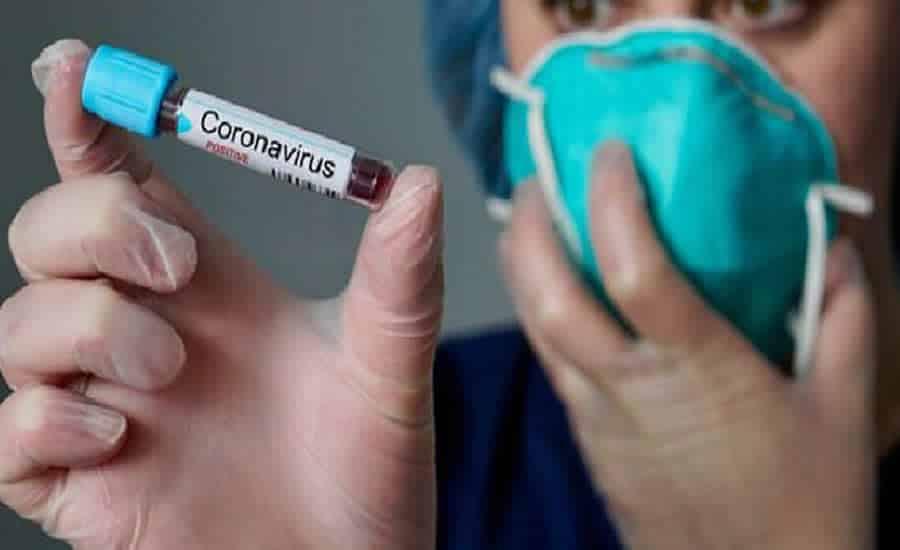 Resultado de imagem para exame coronavirus